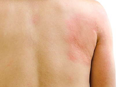 Rash Treatments Huntington NY - Itchy Skin - Dermatitis