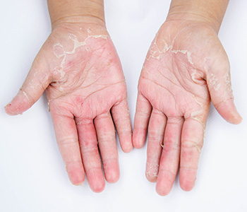 Dr. Roger Koreen explains about Contact dermatitis