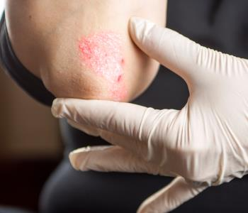 treatment for Eczema from Specialist in Huntington, NY