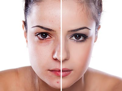Facial Warts Huntington at Dermatology & Cosmetic Laser Center - image