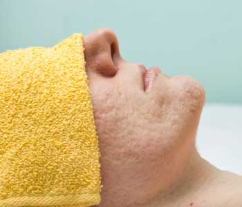 Microdermabrasion for Acne Scars, Dermatology & Cosmetic Laser Cente