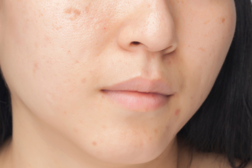 Microdermabrasion For Ane Mark at Dermatology & Cosmetic Laser Center - image