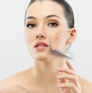 woman's acne prone skin area peeling away