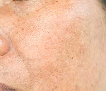 Treatment for Sun damaged skin  from dermatologist in Huntington, NY