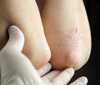 Dermatology 101: What is the cause of Psoriasis?