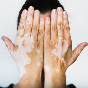 Vitiligo on the hands