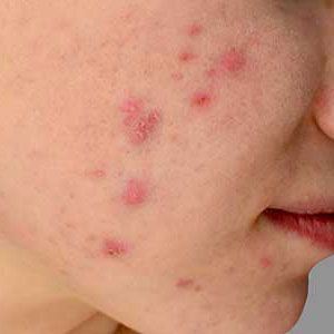 I found effective acne treatment near me in Huntington