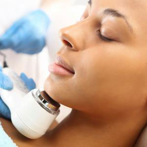 Huntington, NY dermatologist offers effective laser treatment for acne with Isolaz