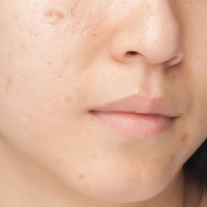 Treatment for acne and acne scars