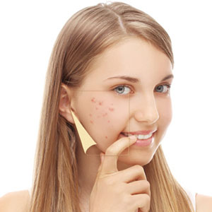 Why patients seek Isolaz acne treatment in our Huntington, NY practice