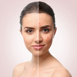 Avoiding acne scars removal with precise care in Huntington