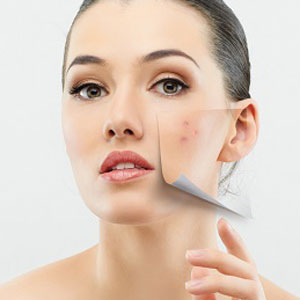 Huntington, NY area patients ask their doctor, should I get a chemical peel?