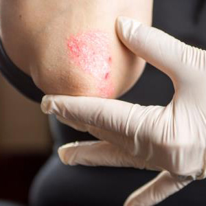 Specialist in Huntington, NY discusses the causes and treatment of Eczema