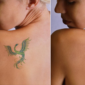 Change the past with safe laser tattoo removal in Huntington, NY