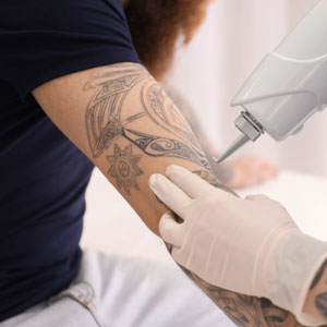 "Patients in Huntington, NY ask, ""Is laser tattoo removal worth it?"""