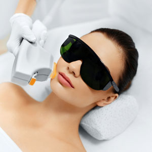 IPL photofacial is a great laser therapy for lines and wrinkles in Huntington