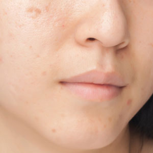 Microdermabrasion for acne mark