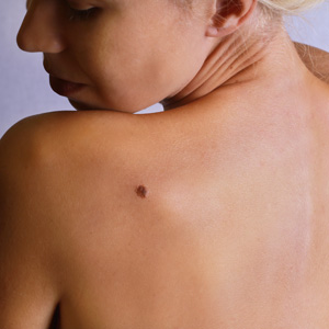 Young woman looking at the birthmark on the back