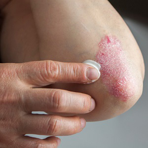 Huntington, NY area patients ask how to treat psoriasis
