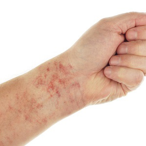 How Huntington area patients can address a dry skin rash