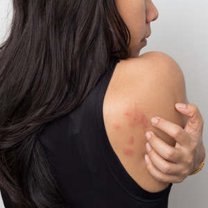 Huntington, NY area patients ask if there is a cure for rashes
