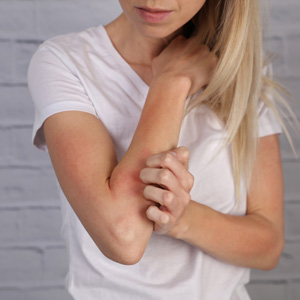 Huntington, NY area patients may enjoy identification of their skin rash at our practice