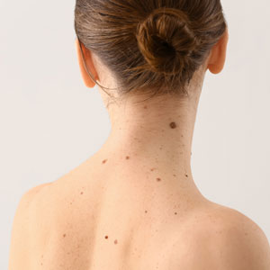 Moles and the potential for a skin cancer diagnosis in Huntington