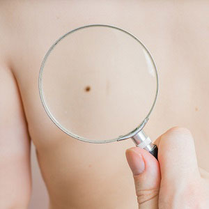 Woman mole on back being looked through magnifying glass