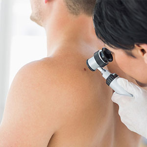 Doctor checking a mole on patient skin
