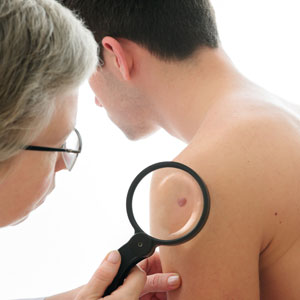 Your Huntington dermatologist discusses how to promote healing after skin cancer biopsy