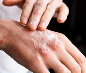 Dermatologist doctor doing treatment, male patient with allergic rash dermatitis eczema skin, Skin diseases.