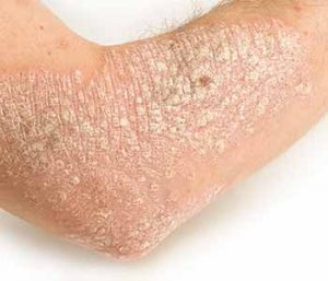 Suffering from eczema