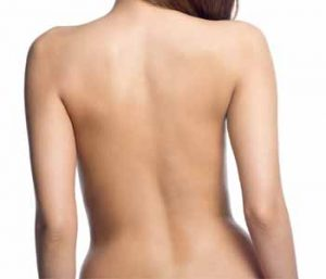 Woman back after tattoo removal