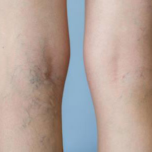 Sclerotherapy is a safe method of spider vein removal in Huntington, NY
