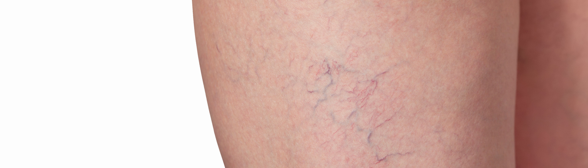 Varicose veins and capillary veins in the legs.