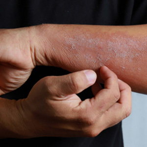 Skin rashes on man's arm
