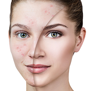 Discover the benefits of laser treatment for acne scars in Huntington, NY