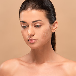 Facial fillers and cosmetic injections for Huntington area patients with acne scars