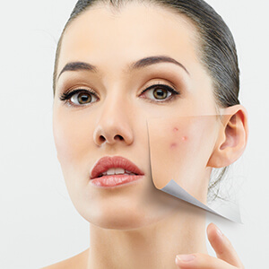 Find a Doctor Removing Acne Scars in Huntington, NY