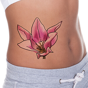 Is Laser Tattoo Removal Safe? Huntington, NY Area Residents Ask