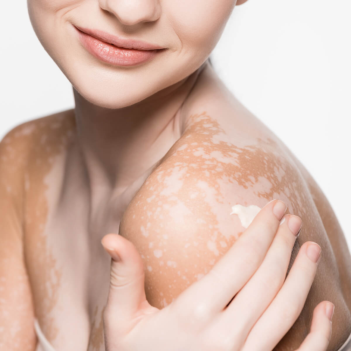What Causes Vitiligo And Treatments Available at Dermatology & Cosmetic Laser Center in Huntington NY Area