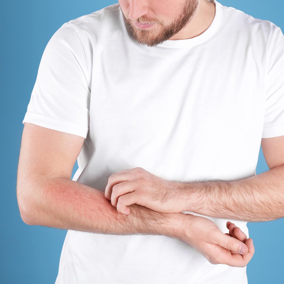 Different types of rashes - Huntington NY Area